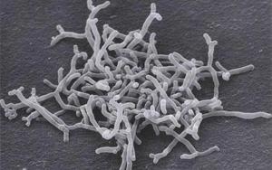 Cell子刊:益生菌可减缓急性和慢性肾脏疾病进展