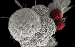 """Nature子刊:做免疫细胞好难,太拼""""老""""得快!科学家找到新方法,有望助其""""重获新生"""""""